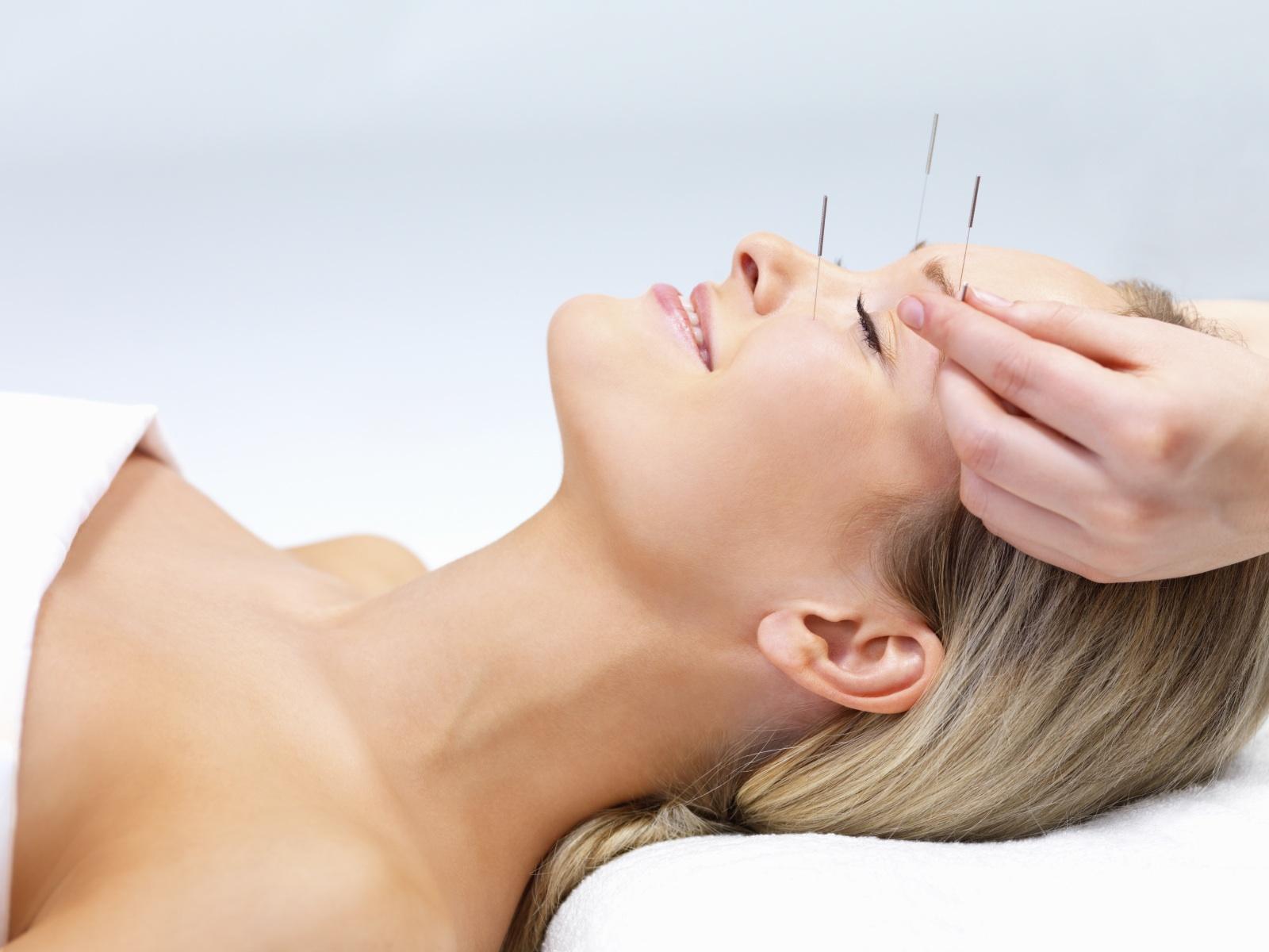 Resultado de imagen de acupuntura